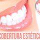 Plano odontológico e cobertura estética